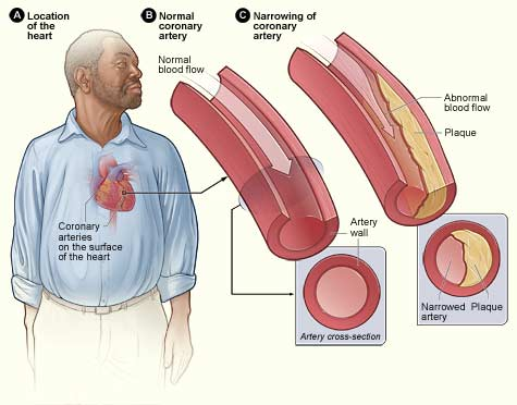 Facts about Coronary Heart Disease Prevention and Treatment